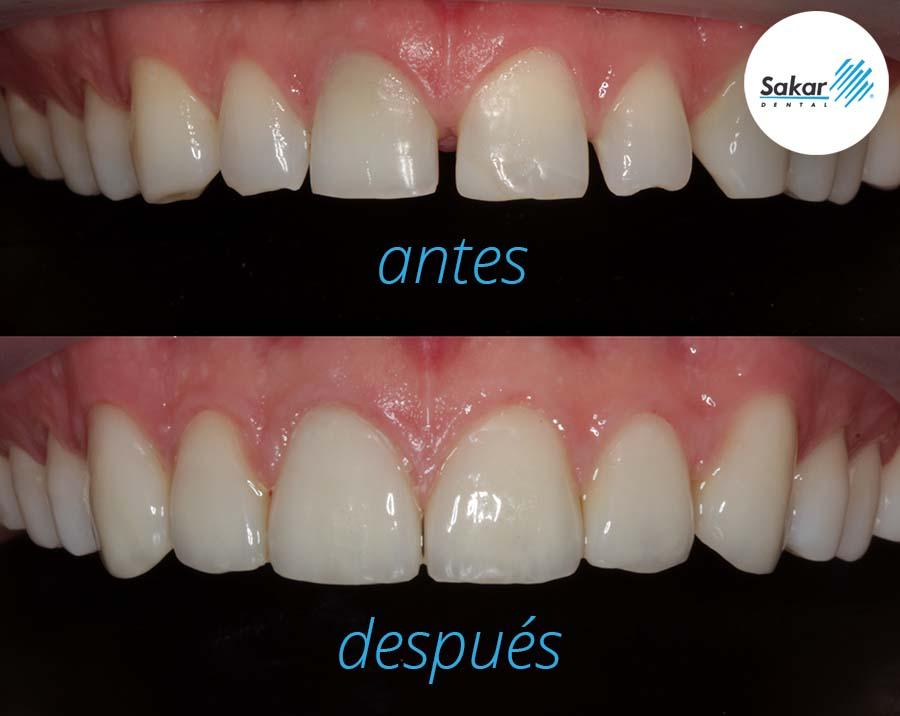 20210914 - Sakar Dental - Las coronas dentales en la rehabilitación oral ants y depues