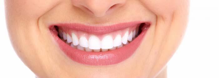 diseño de sonrisa y tratamientos