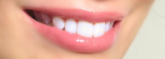 factores-que-influyen-diseno-de-sonrisa-sakar-dental.png