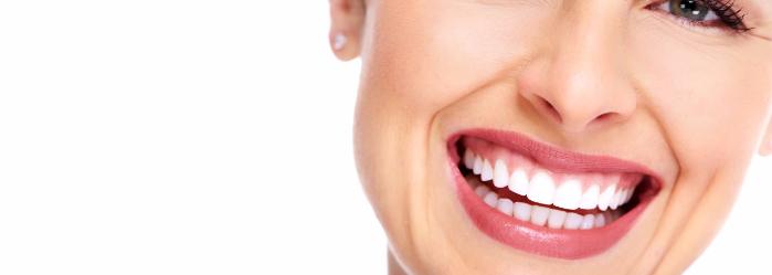 tratamientos-diseno-sonrisa.png