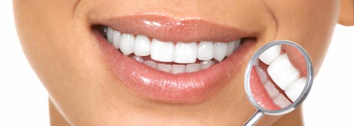 5-cosas-que-debe-saber-antes-de-someterse-a-un-diseno-de-sonrisa.png