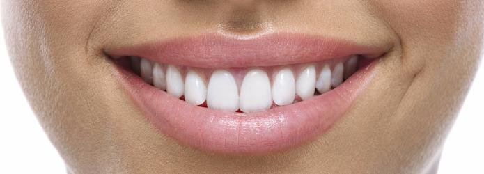 dentistas-en-polanco-la-importancia-del-contorno-gingival-para-las-carillas-dentales.png