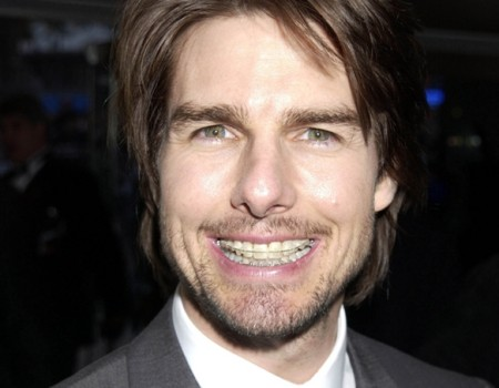 tom-cruise-con-brackets-esteticos