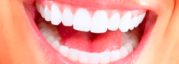 tipos-de-implantes-dentales-diseno-de-sonrisa.png