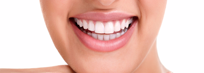 dientes-manchado-el-diseno-de-sonrisa-solucion.png