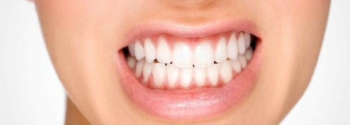 guarda-oclusal-tratamiento-para-aliviar-bruxismo-odontologia-integral-en-polanco