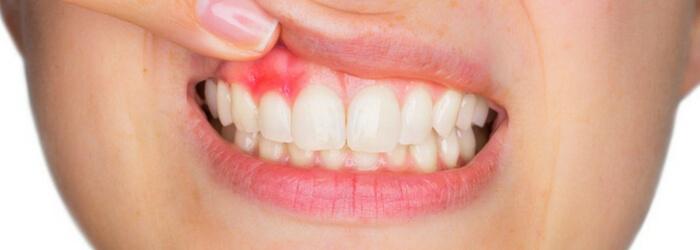 gingivitis-que-es-como-prevenirla