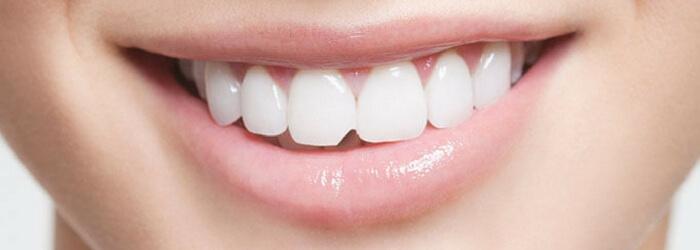 lesiones-dentales-comunes-tratamiento