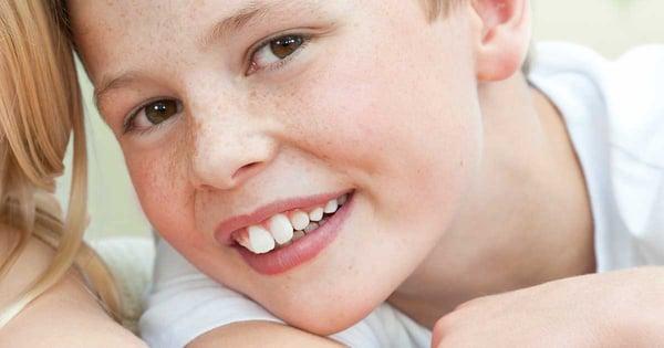dientes-salidos-brackets-esteticos.jpg