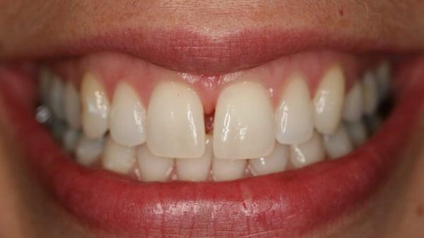 espacio-entre-diente-brackets-esteticos.jpg