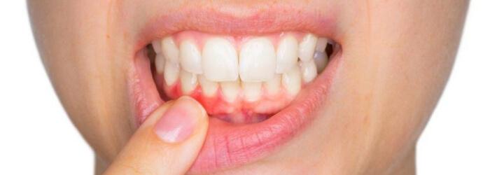 diferencia-gingivitis-periodontitis