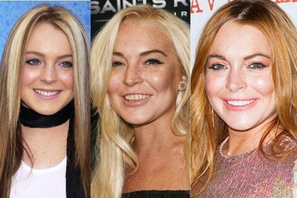 lindsay-lohan-sonrisa-antes-despues-carillas-dentales