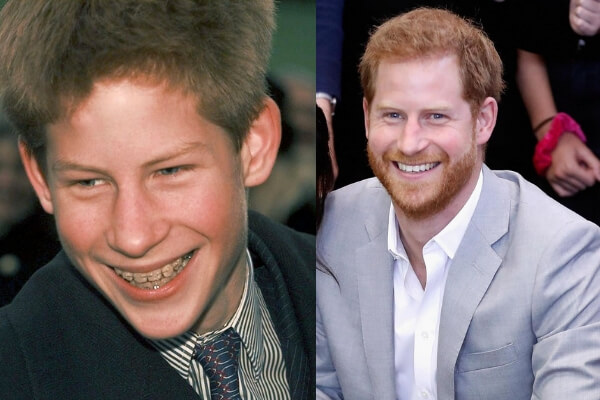 principe-harry-brackets-esteticos