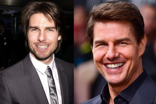 tom-cruise-brackets-esteticos