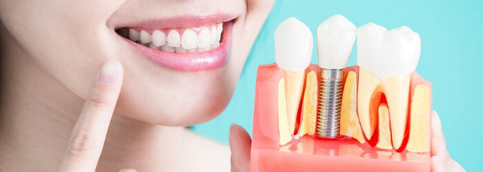 como-se-pone-implante-dental