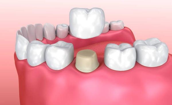 coronas.dentales-sakar-dental