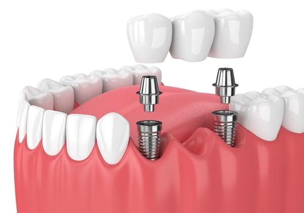 implantes-dentales-sakar-dental
