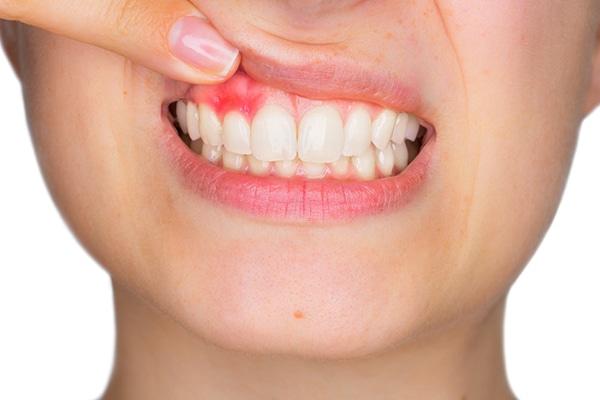 periodontitis-encias-inflamadas