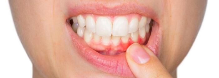 que-es periodontitis-como-prevenirla