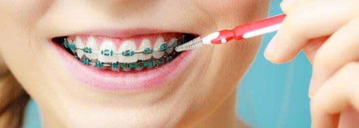 consejos-tratamiento-ortodoncia-cuarentena