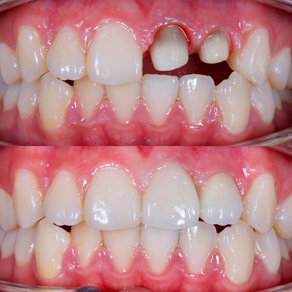 antes-y-despues-implantes-dentales-Sakar-06