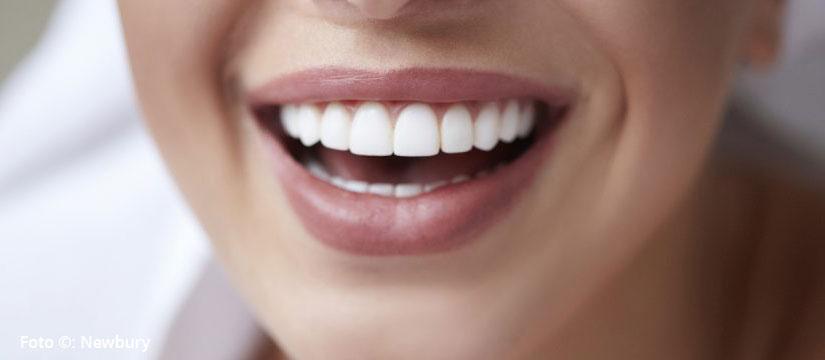 ¿Quieres una sonrisa perfecta? 4 cosas que debes saber antes de ponerte carillas dentales