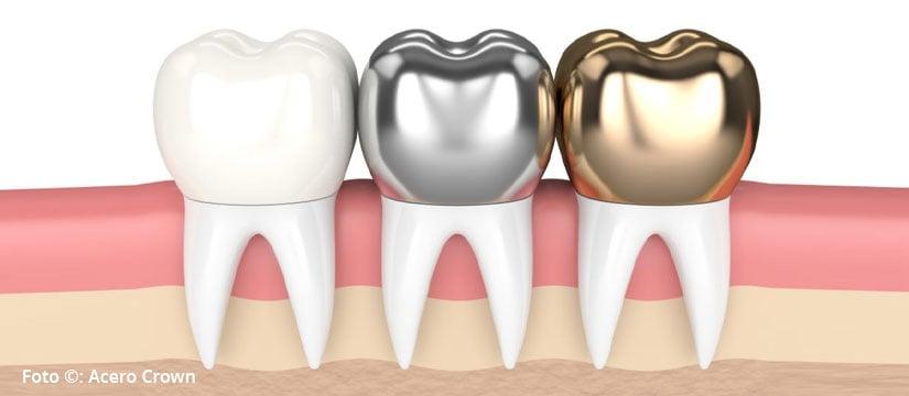 Coronas dentales – ¿cuándo necesito ponerme una?