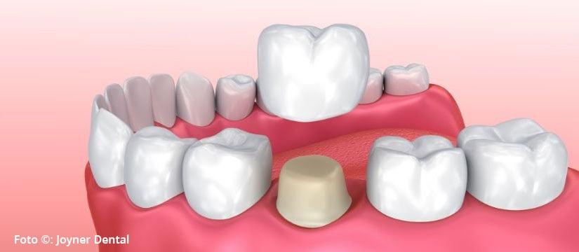 Coronas dentales – ¿Cuánto duran?
