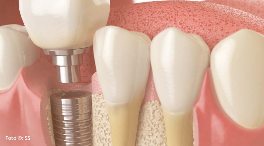 Los implantes dentales como tratamiento de la rehabilitación oral