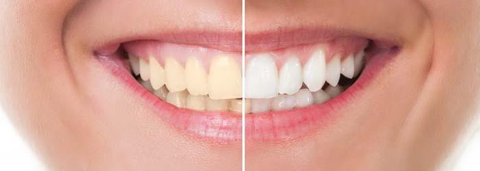 ¿Tienes manchas en los dientes? Es momento de un diseño de sonrisa