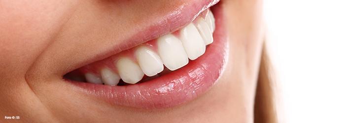 El diseño de sonrisa, ¿cuál es el proceso y sus tratamientos?