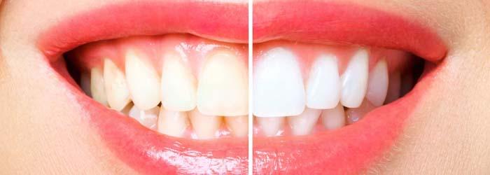 Antes de someterte a un diseño de sonrisa analiza estas 5 cosas