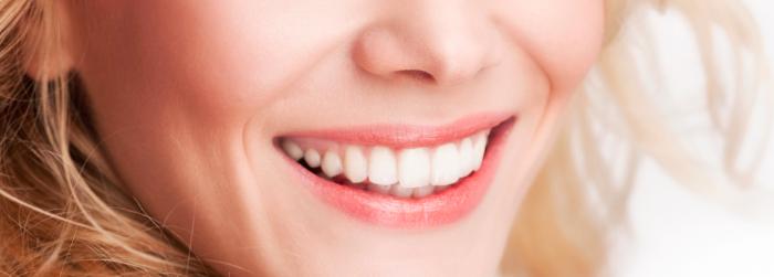 Diseño de sonrisa: ideal para tener dientes perfectos