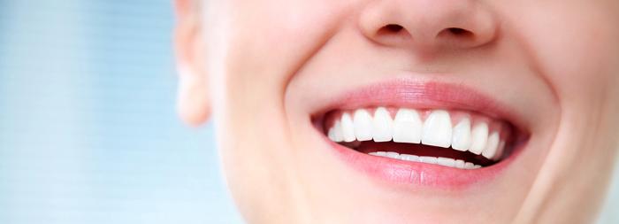 Carillas dentales: su solución para una sonrisa de celebridad