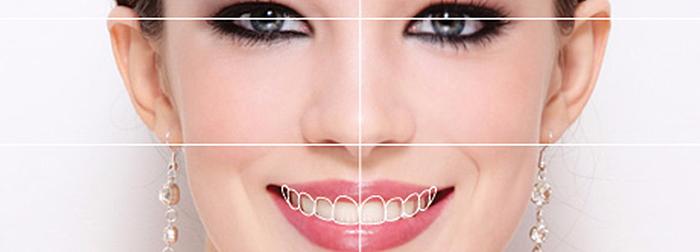 ¿Qué es el diseño de sonrisa y por qué está tan de moda?