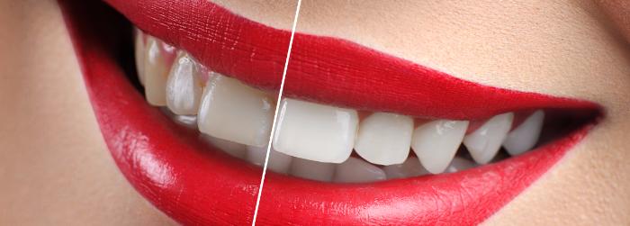 Los 4 principios internacionales del diseño de sonrisa