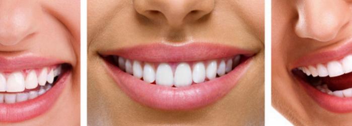 Dientes blancos y perfectos con el diseño de sonrisa