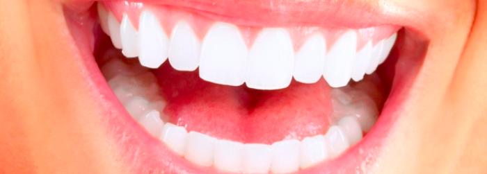 ¿Cuáles son los tipos de implantes dentales?