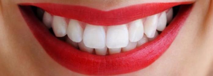 5 soluciones para dientes perfectos con el diseño de sonrisa
