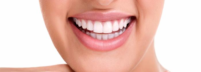 ¿Tienes dientes manchados? El diseño de sonrisa es la solución