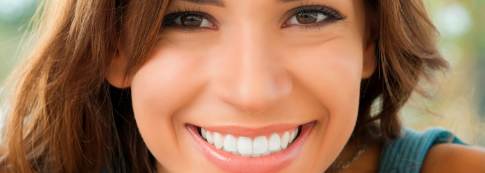 5 ventajas del diseño de sonrisa