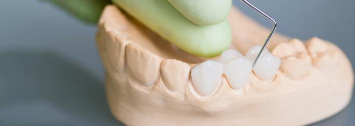 Rehabilitación oral: ¿cómo se realiza una prótesis dental (puente dental)?