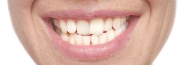 Factores que influyen en la mala posición de los dientes
