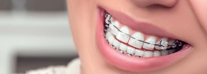 ¿Qué tipo de ortodoncia existen y para qué sirve cada una?
