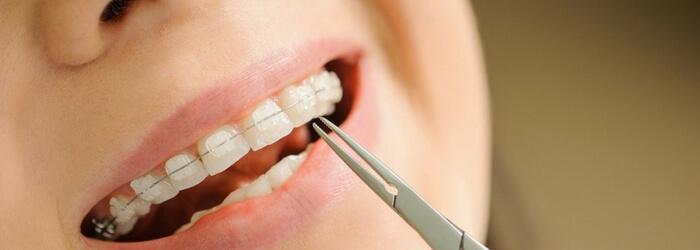 Ortodoncia en niños: tipos y beneficios