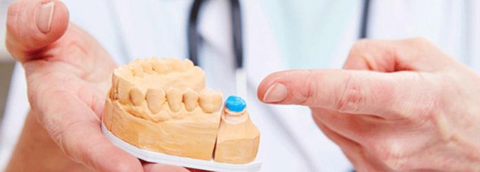 Conoce los 5 tipos de coronas dentales y cuál te queda mejor