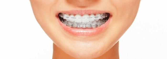6 problemas dentales que solucionan los brackets estéticos