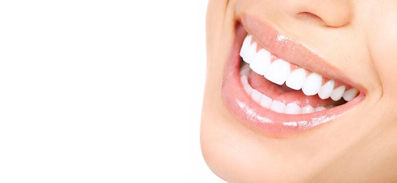 sonrisa-brackets-esteticos.jpg