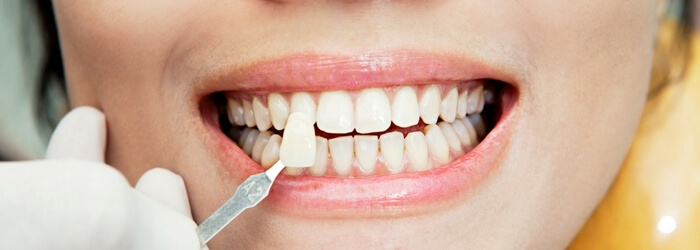 Tipos de carillas dentales ¿cuáles son las mejores?
