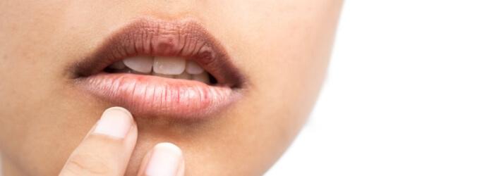El síndrome de Sjögren y los problemas dentales que conlleva